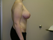body-lift-surgeons-after