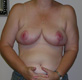 breast-cancer-reconstruction-after