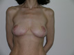breast-lift-surgery-after