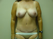 breast-lift-after