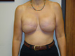 breast-reconstruction-plastic-cosmetic-surgery-after