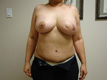 breast-reconstruction-after