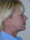 Facelift Cosmetic Surgery After