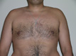 male-gynecomastia-after