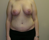 tummy-tuck-after