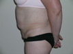 abdominoplasty-mini-tummy-tuck-before