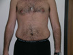 abdominoplasty-surgery-before