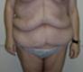 abdominoplasty-before