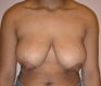 body-lift-plastic-surgery-before