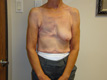 breast-reconstruction-procedures-before