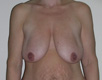 breast-lift-cosmetic-surgery-before