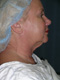 Facelift Cosmetic Surgery Before