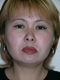 facelift-surgery-before