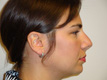 rhinoplasty-before