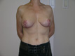 breast-cancer-after