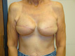 breast-reconstruction-procedures-after