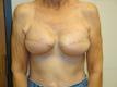 breast-reconstruction-procedures-after
