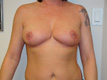 breast-reduction-cosmetic-surgery-after