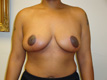 breast-reduction-surgeon-after