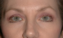browlift-Blepharoplasty-before