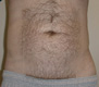 liposuction-cosmetic-surgery-after