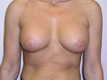 plastic-cosmetic-surgeons-breast-augmentation-after