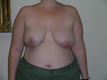 reconstructive-breast-surgery-after