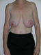 breast-cancer-before