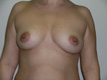 breast-implants-plastic-surgery-breast-augmentation-before