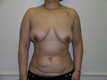 breast-reconstruction-surgery-before