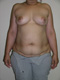 breast-reconstruction-before