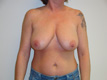breast-reduction-cosmetic-surgery-before