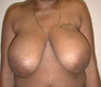 breast-reduction-surgery-before