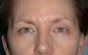 browlift-Blepharoplasty-after