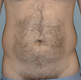 liposuction-cosmetic-surgery-before
