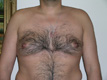 male-gynecomastia-before